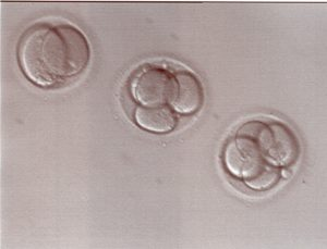 2-cell-and-4-cell-embryos-2-days-after-retrieval